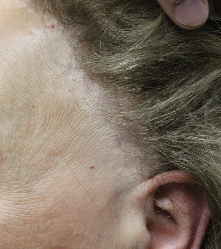 Dr Donovans Daily Hair Loss Blog 2011 2018 Donovan Hair Clinic