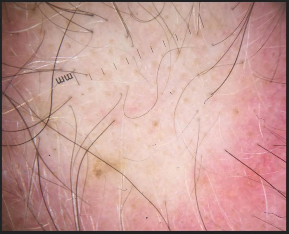 MPB-scar