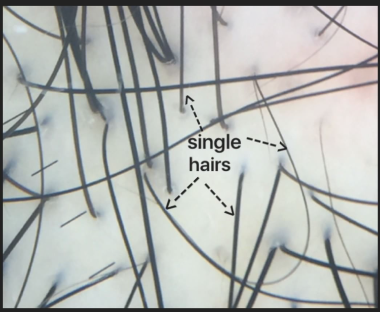 singlehairs.jpg