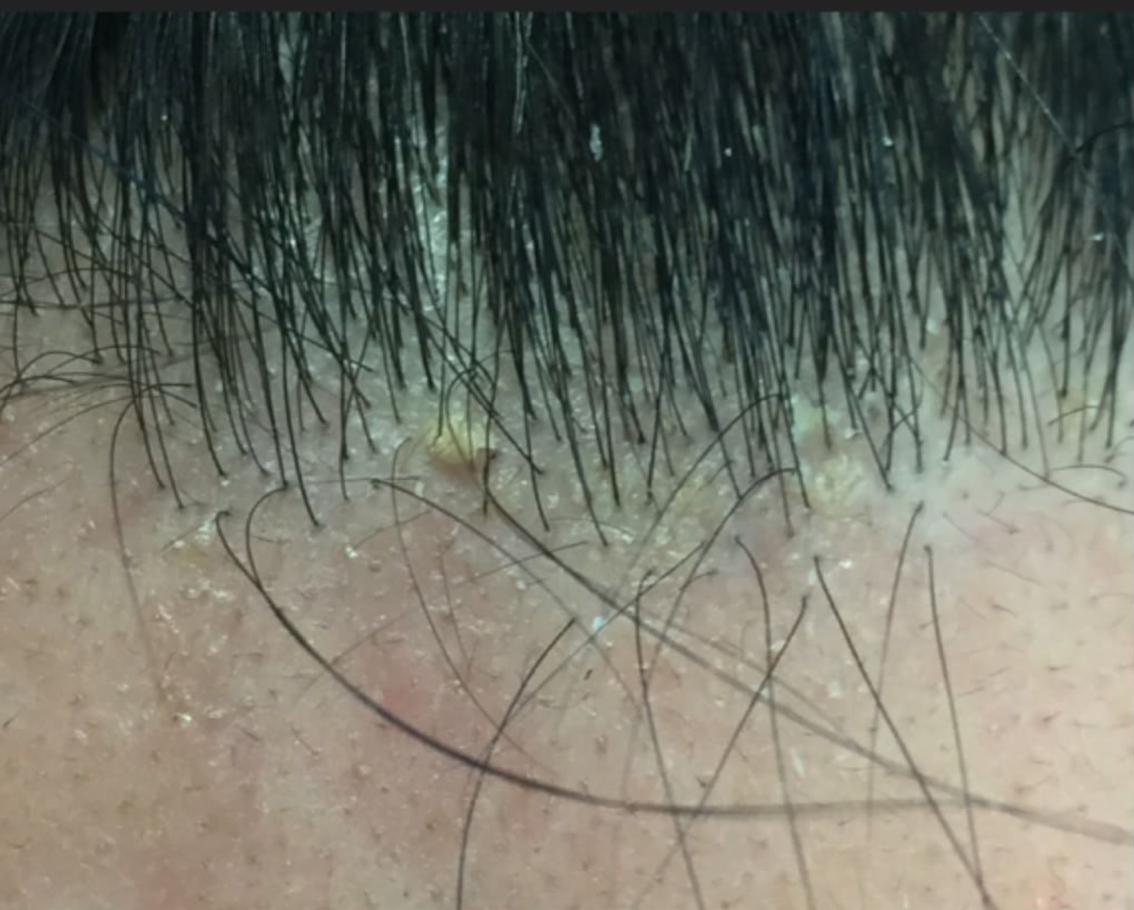 Seborrheic dermatitis of the Frontal Hairline — Donovan Hair Clinic