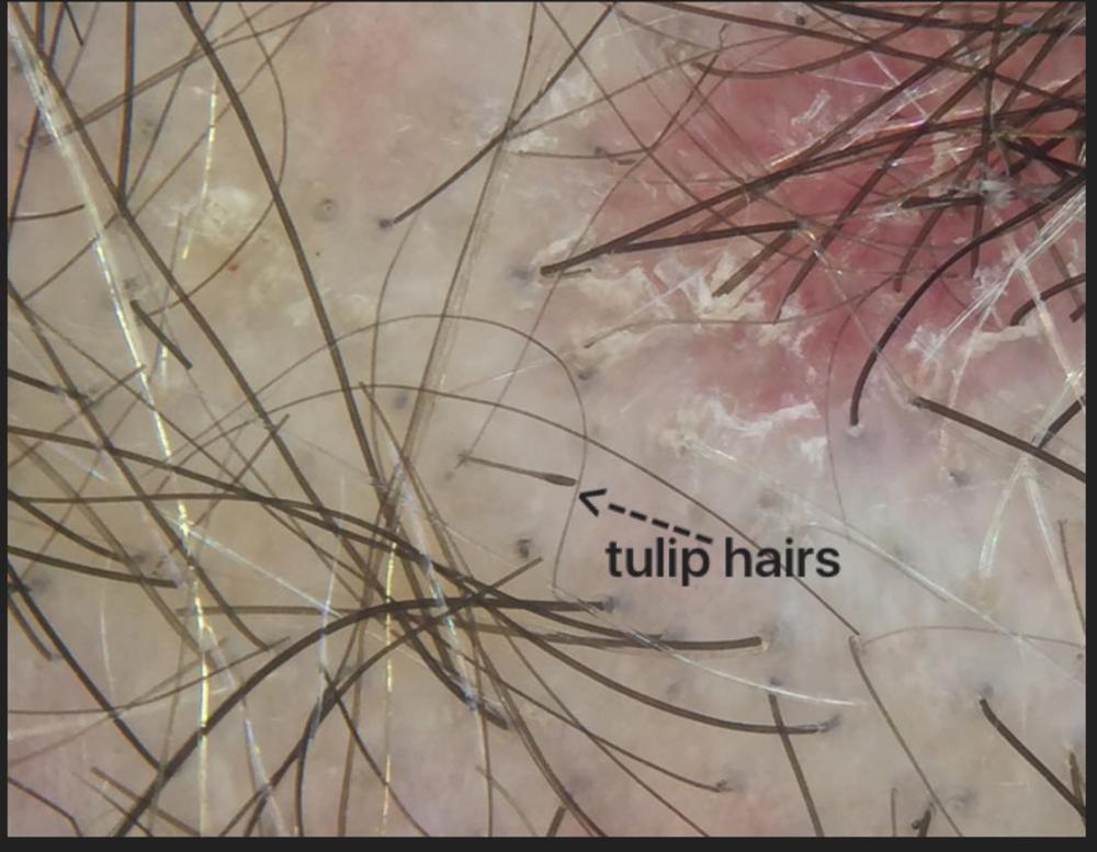 tulip hairs