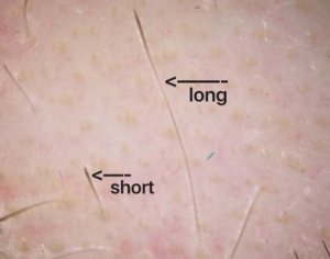 Trichoscopy In Hair Loss Neograft Hair Transplantation