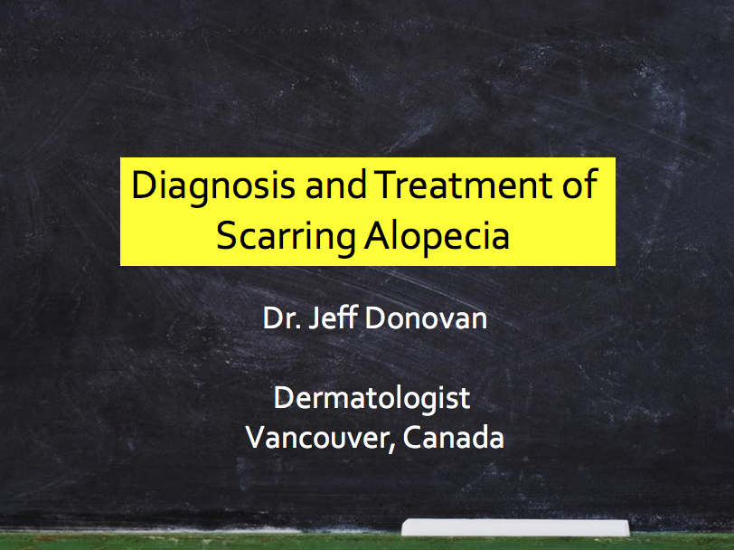 Diagnosis & Treatment of Scarring Alopecia