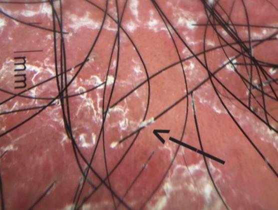 Trichoscopy In Hair Loss Neograft Hair Transplantation