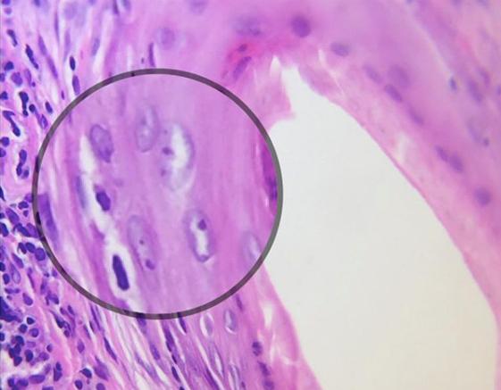 lichenoid change.png