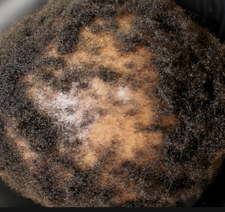 Central centrifugal cicatricial alopecia (CCCA) in a woman initially misdiagnosed as having temporary hair loss from a relaxer. The correct diagnosis for this patient was CCCA which causes permanent hair loss.