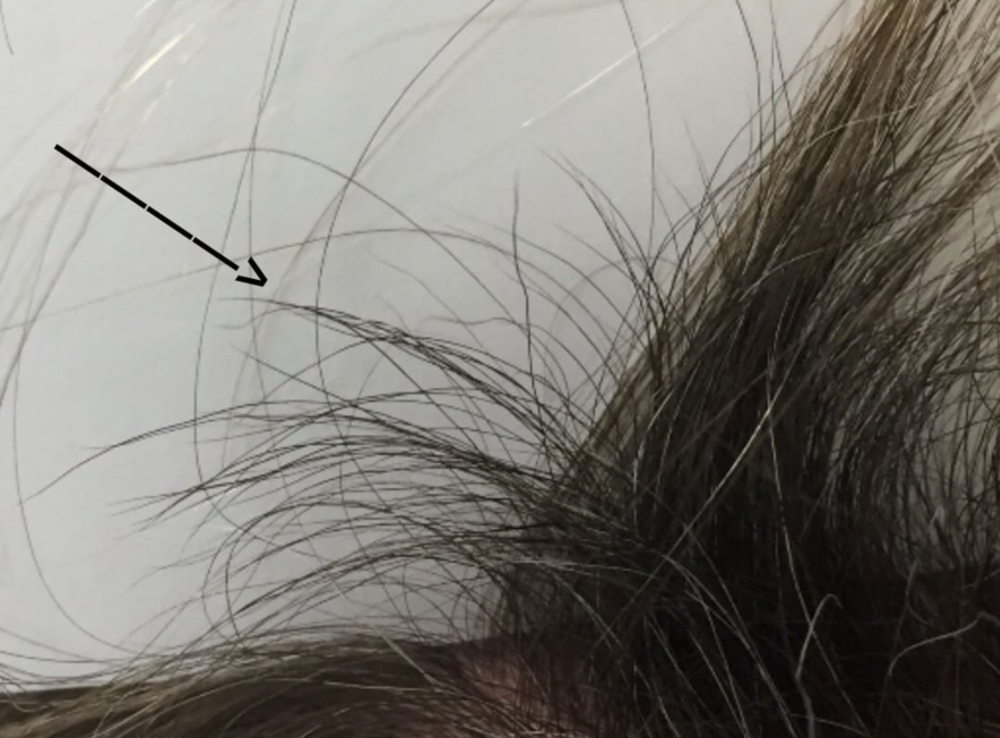Regrowth in a patient with scarring alopecia following aggressive treatment