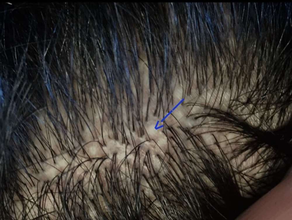 Circular whitish scars in a patient with a previous FUE transplant