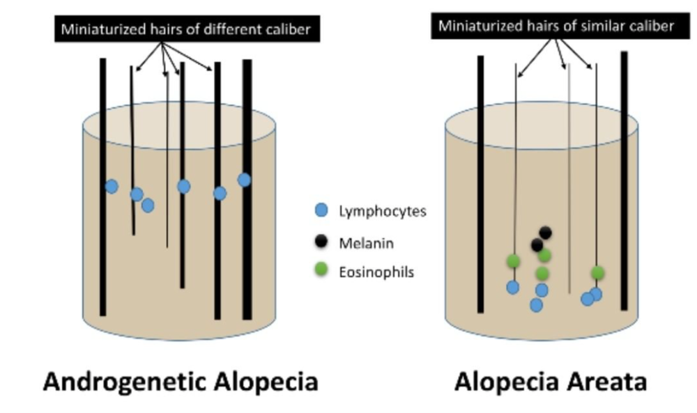 Hair follicle miniaturization can occur in AGA and AA. Hairs are similar caliber in AA when miniaturization is present.