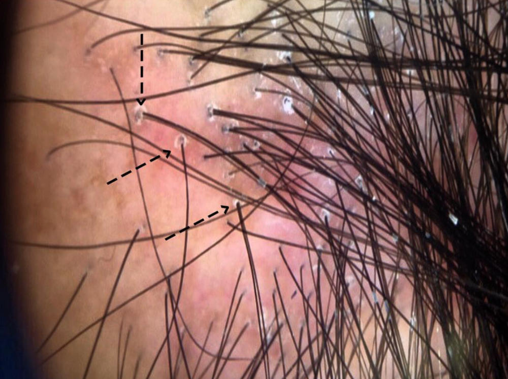 Typical scale and redness around hair follicles in a patient with inflammatory FFA