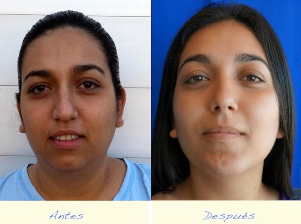 implantes-faciales.jpg