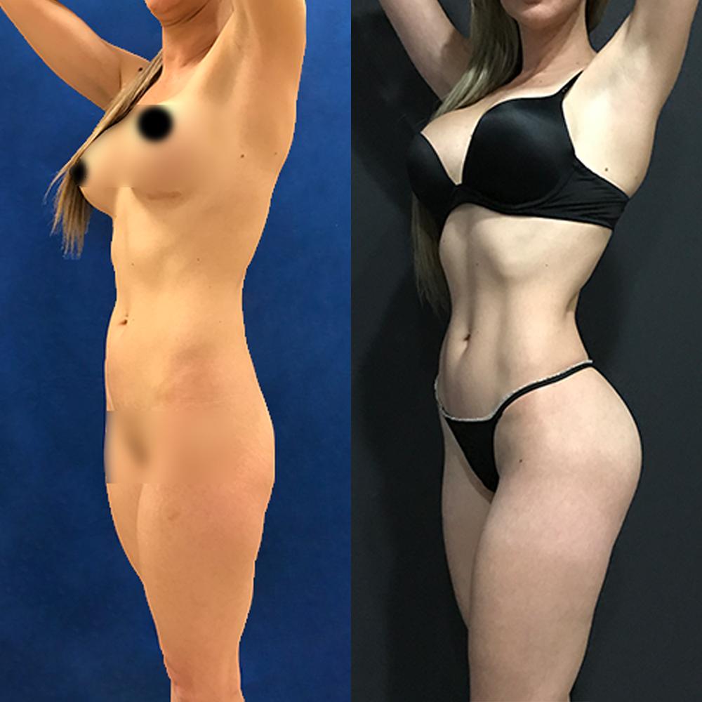 Liposucción HD - Definiendo el contorno muscular