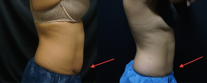 Mommy Pouch Fat Freeze, Before and After