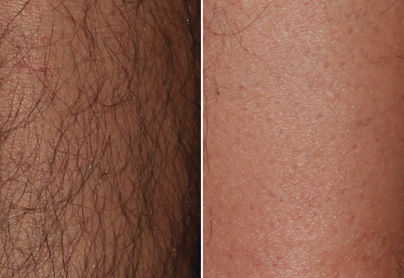 Laser Hair Removal Before and After-Before and after 6 months after BBL Hair Removal/ 3 treatments