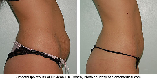 Smart-Lipo Laser Liposuction, Non-Surgical Fat Removal Before and after