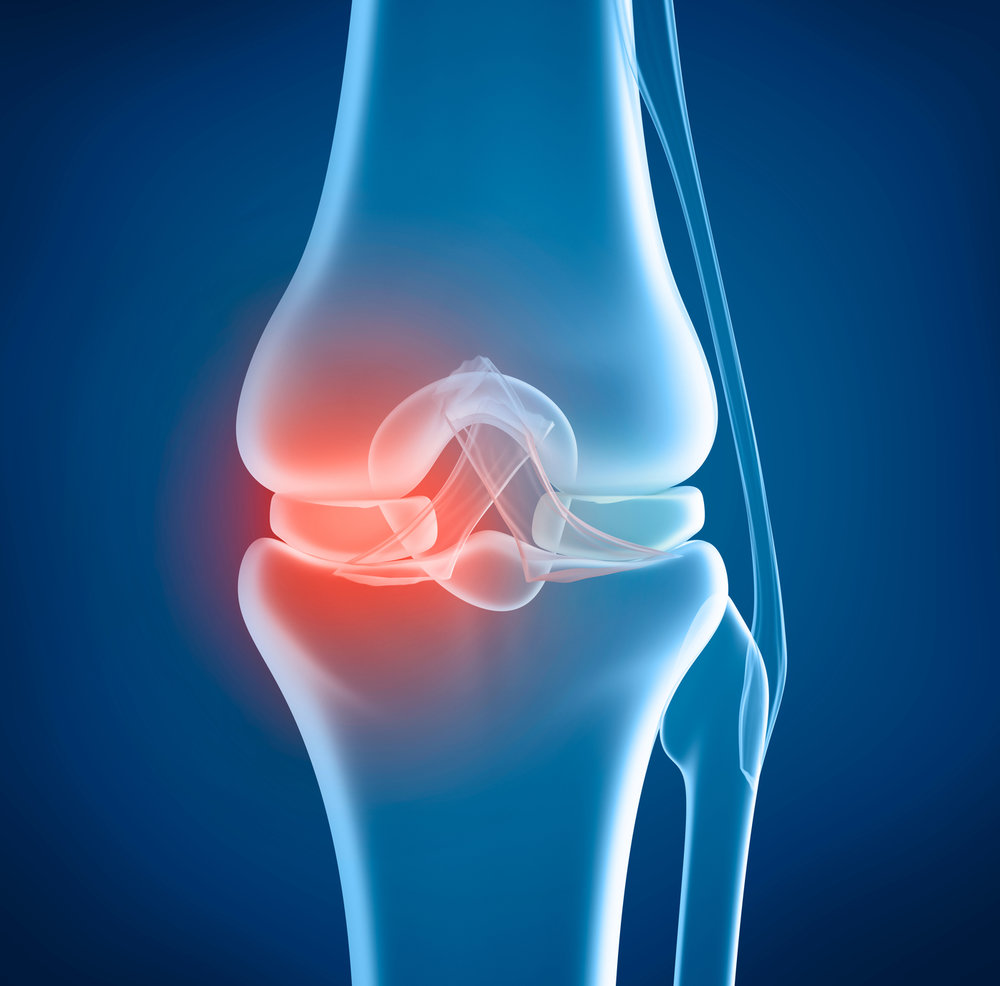Cartilage provides a cushion and lubrication between the knee joint. with age this cushion erodes and causes more friction and pain. stem cells will allow the re-growth of this natural tissue.
