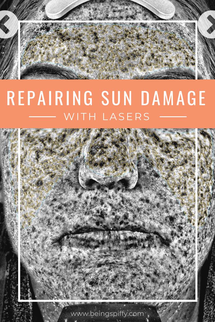 repairing_sun_damage_lasers.jpg