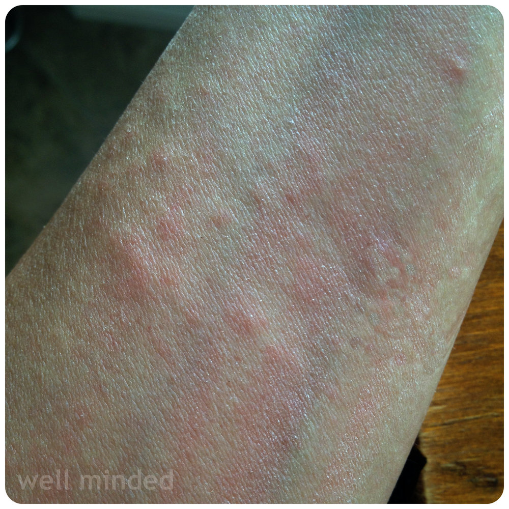 treating my animal allergies through exposure   This is my inside forearm a couple of hours after my consult.