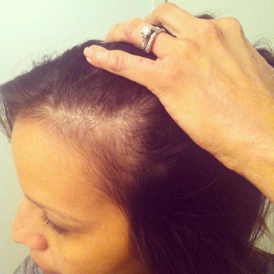 pp hairloss