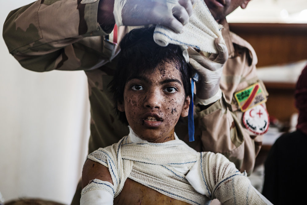 A dazed child receives medical treatment at an Iraqi army medical unit after fleeing heavy fighting in al-Zinjili neighborhood. June 03, 2017.