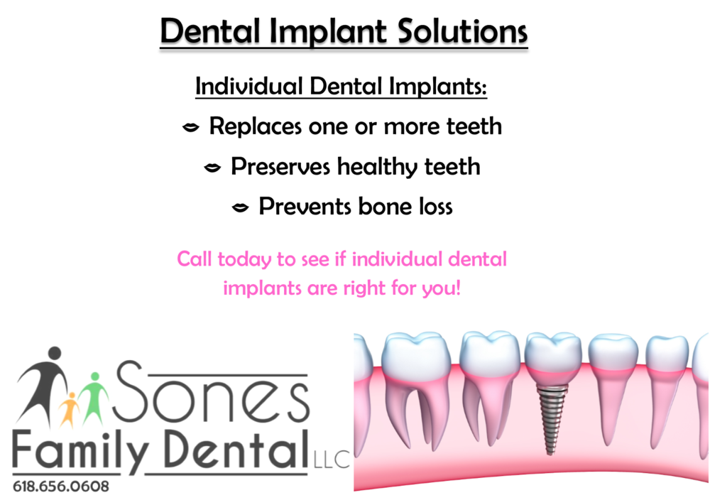 dental implants sol 1.png
