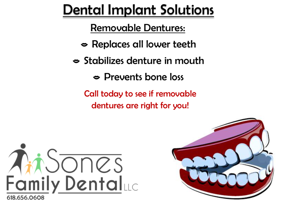 dental implants sol 3.png