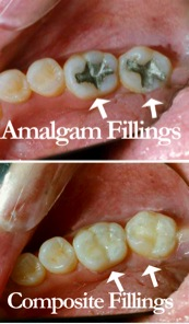 buckhead dental group composite filling.jpg