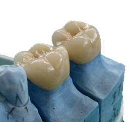Porcelain dental crowns.png