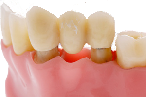 porcelain dental bridge.png