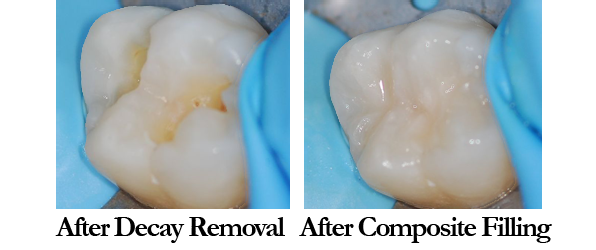 Composite Filling compare after decay removal and after fillinf.png