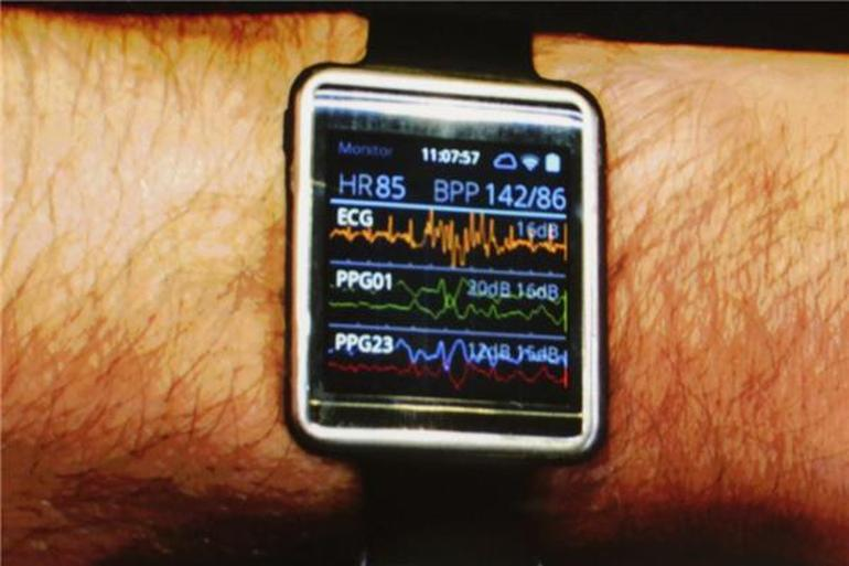 The upcoming Simband from Samsung, which was created for people who enjoy pretending they are in the hospital.