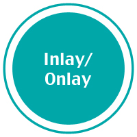4-inlay_onlay.jpg