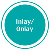 4-inlay_onlay.jpg