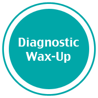 diagnostic_waxup.jpg