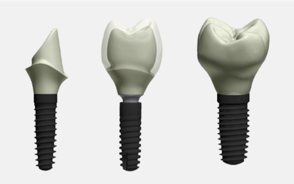 Our 3 types implants.  Type 1. Custom Abutment ( Zirconia Hybrid / Titanium)  Type 2. Screw Retained Abutment layered type. (Porcelain on the implant)  Type 3. Full Zirconia Screw Retained abutment (Recommend)