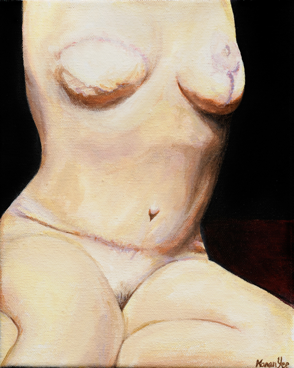 Karen Yee  |  Self-portrait – Survivor  |  2008  |  Acrylic on Canvas  |  10 x 8 inches or 25 ½ x 20 ¼ cm
