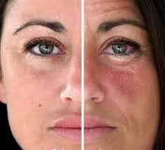 Inflammation in the body can cause redness and flushing in the skin, as seen on the right.