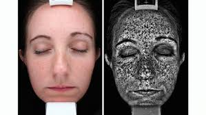 This image shows skin in a normal view on the left and on the right a woods lamp tool is used to see the sun damage beneath the surface.
