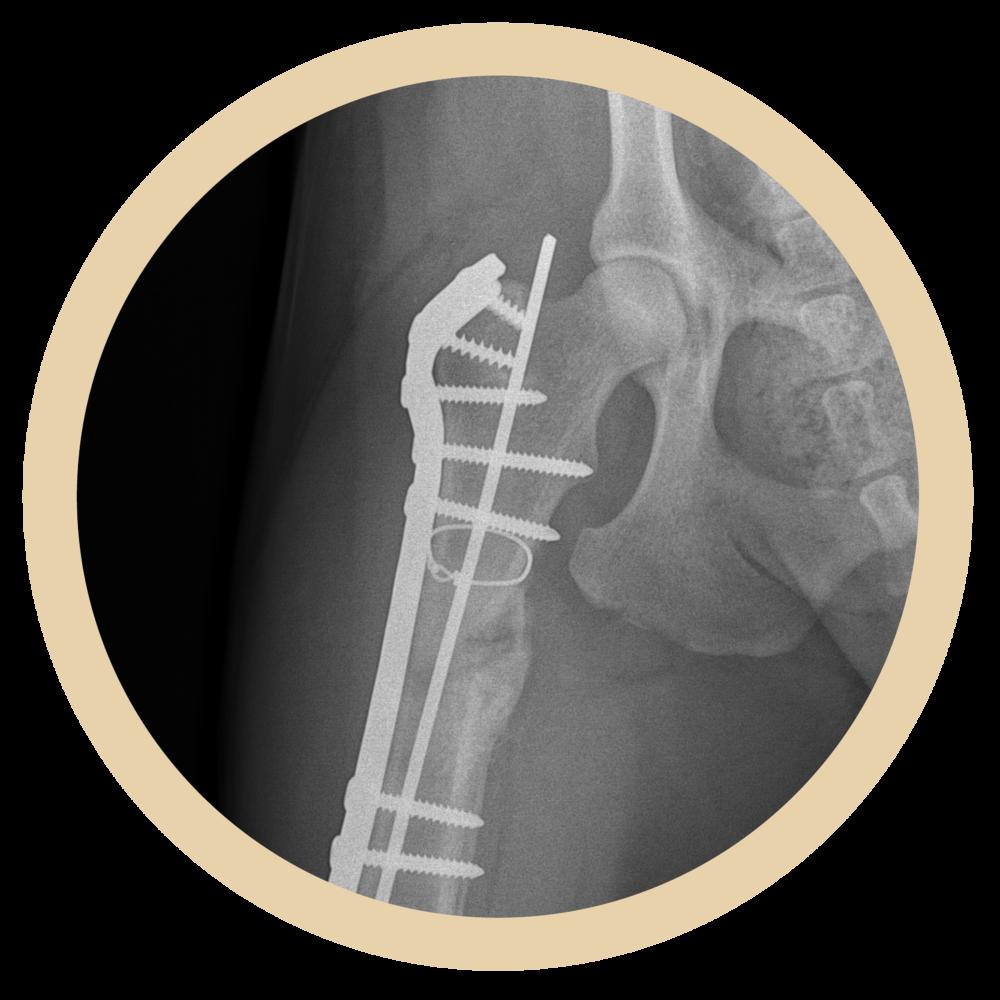 x-ray-dog-leg.png