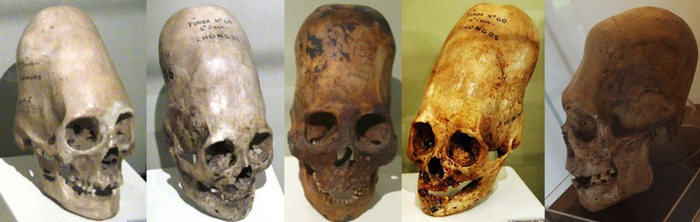 Elongated skulls found in Peru's Paracas Peninsula. Image by Brien Foerster, via Collective Evolution.