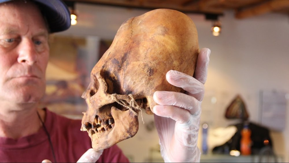 Brien Foerster with an elongated skull. Image by Brien Foerster.