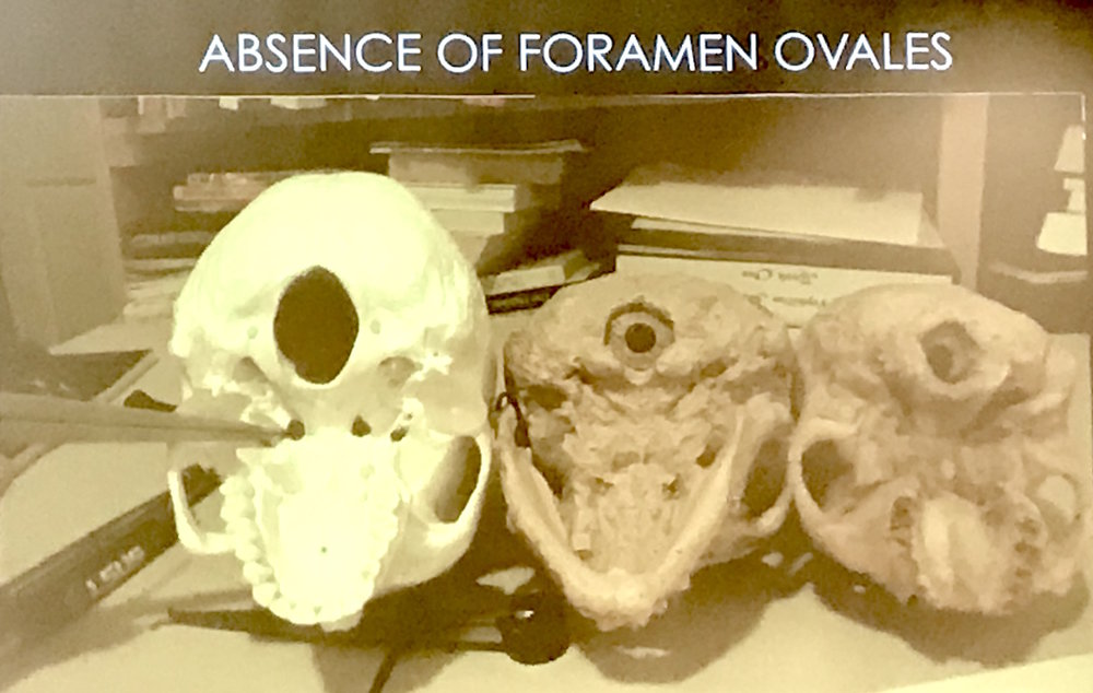"One of the presentation slides: left, we see a normal human skull with the ""foramen ovales"" holes that we all have; right, we see the Paracas skulls with an absence of these holes."