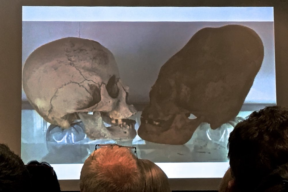 Presentation slide showing the differences between a normal human skull, and a Paracas elongated skull.