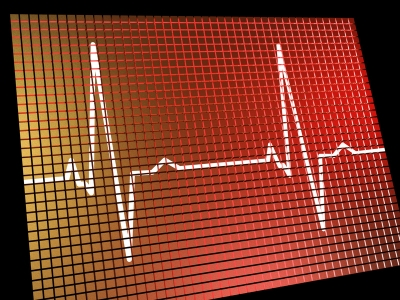 cutcaster-901671906-Heart-Rate-Monitor-Showing-Cardiac-And-Coronary-Health-small.jpg