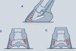 """Figure 1. A - Rotation B - Mediolateral rotation C - Symmetrical distal displacement or """"Sinking"""""""