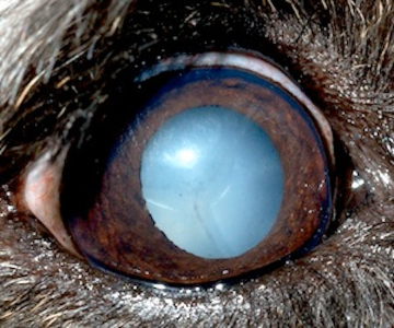 Cataract Brochure