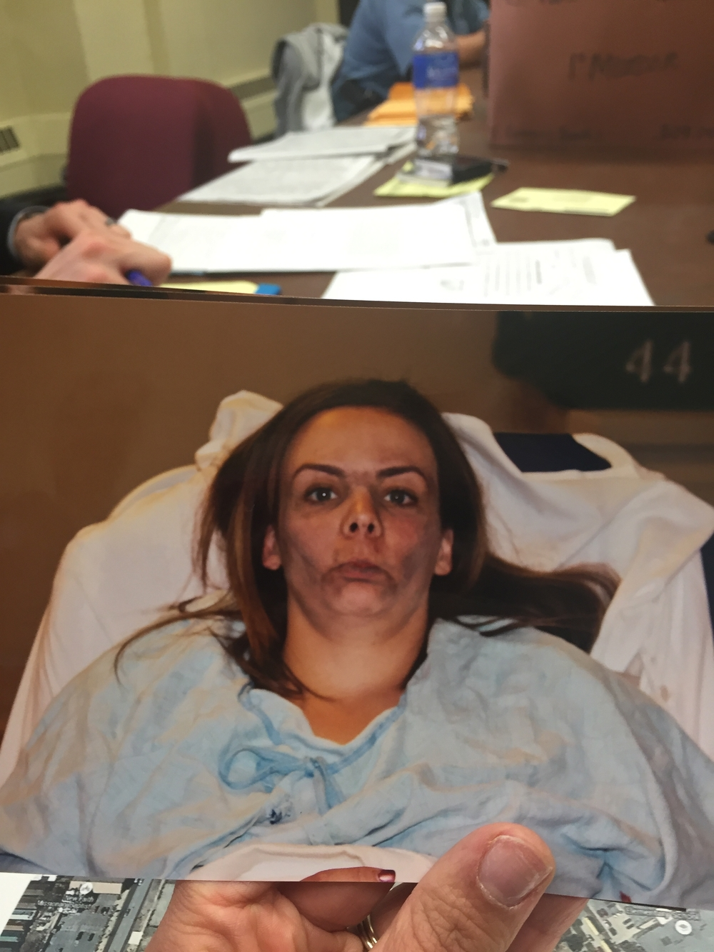 Photo of Muphy in hospital after being dragged underneath a car.