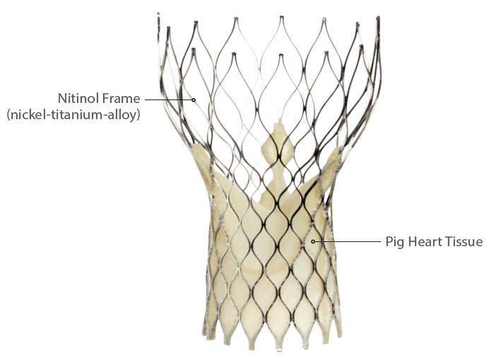 CoreValve TAVR treatment for Severe Aortic Stenosis (AS)