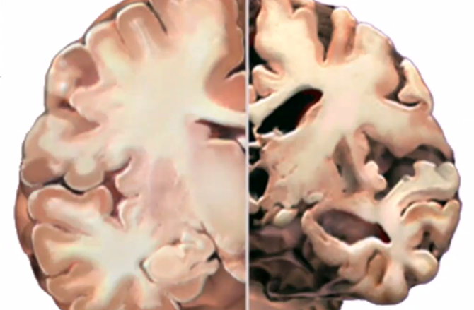 Healthy brain vs. chronically stressed brain