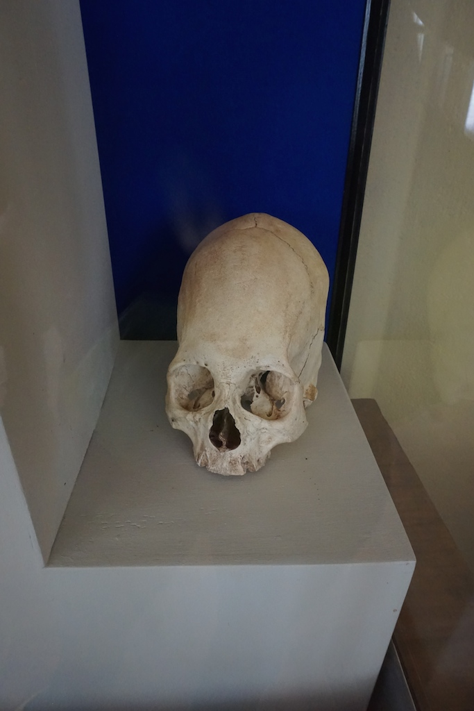 A skull showing cranial deformation favored by nobles at the museum of Sillustani